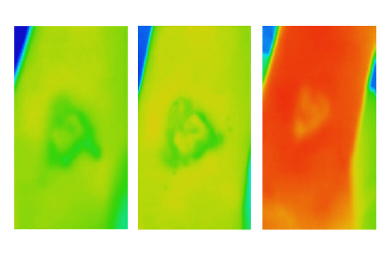 Thermal imaging provides information on how heat is distributed across the wound.